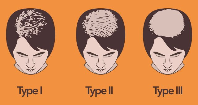 Female pattern baldness Lahore