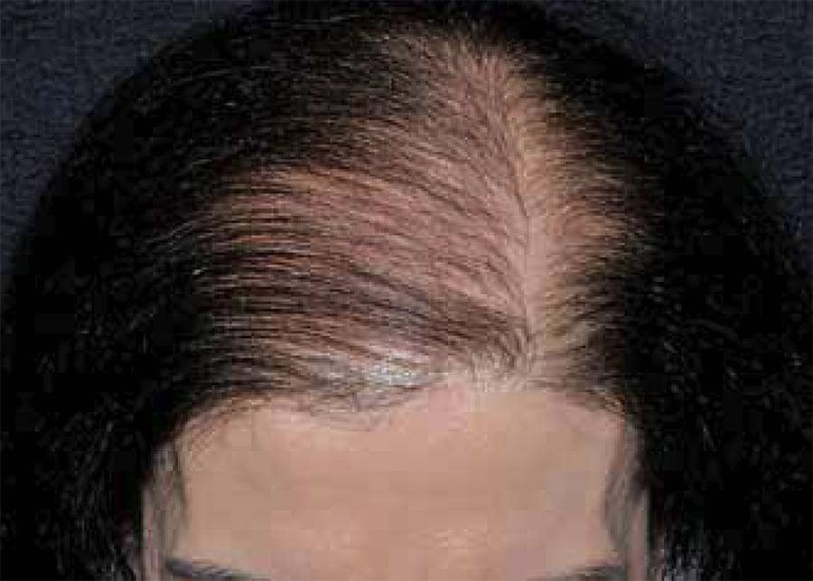 female hair frontal thinning