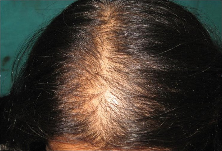 women hair loss clinic Lahore Pakistan