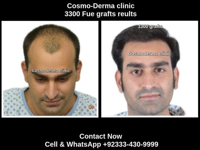 Fue 3300 grafts hair transplant result Lahore Pakistan