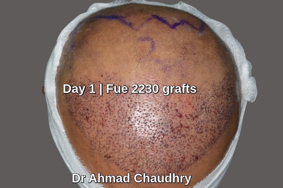 2230 grafts first day procedure
