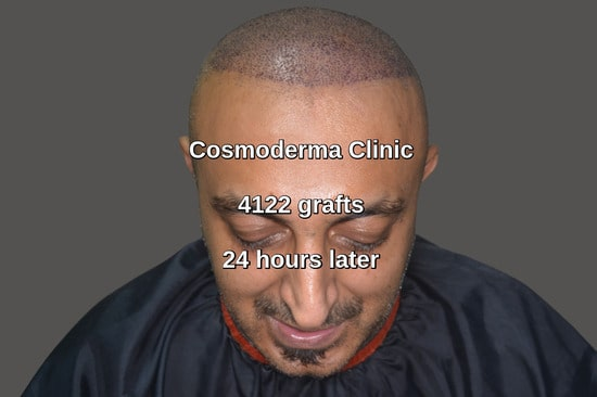 4122 grafts hair transplant Lahore Pakistan
