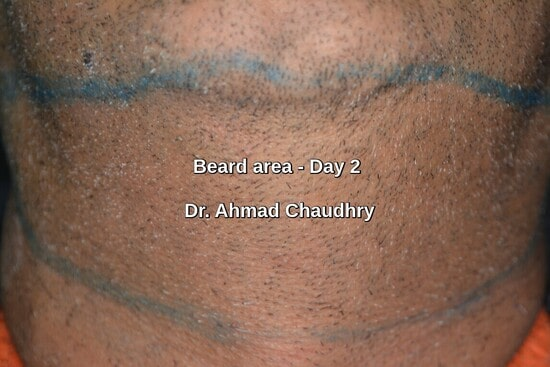 Beard area grafts extraction second day