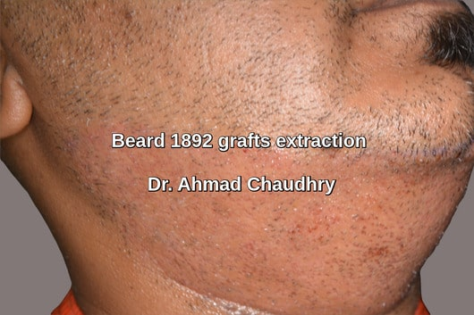 Beard donor area grafts 24 hours later