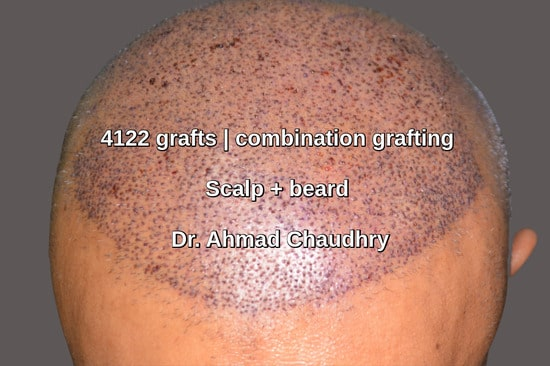 Combination grafting scalp beard